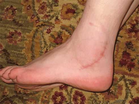 This is what my troubled ankle looks like now.